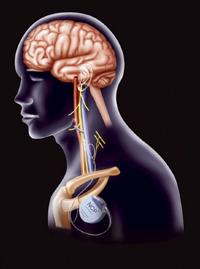 La terapia de estimulación del nervio vago se recomienda cuando el paciente tiene una epilepsia fármaco-resistente y no es candidato al tratamiento quirúrgico o no quiere someterse a una cirugía cerebral..