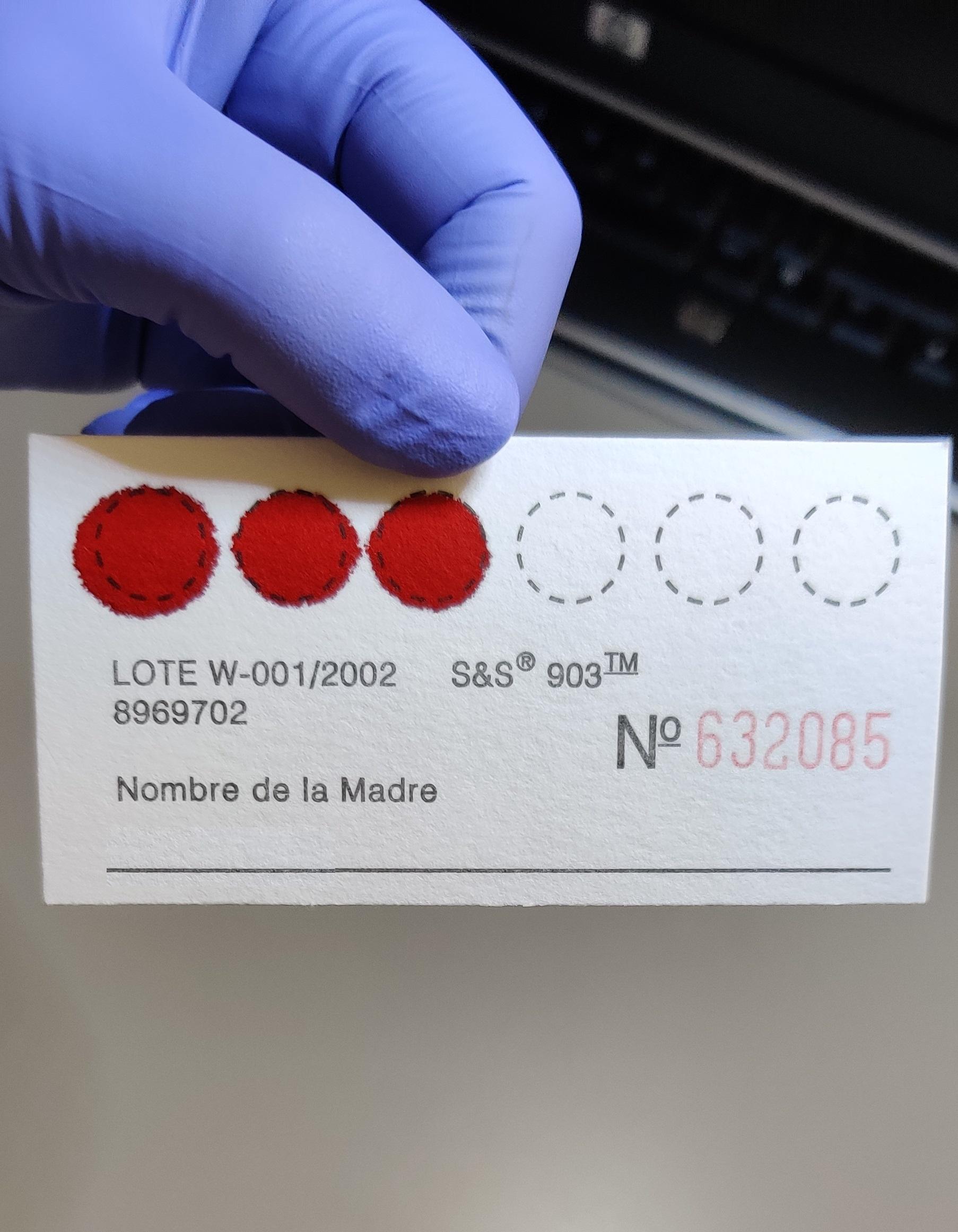 Un procedimiento alternativo implica la punción capilar de la punta del dedo para recoger gotas de sangre que posteriormente se secan en papel de filtro.